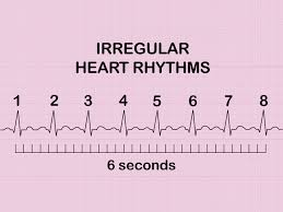 Ecg Chart Examples How To Measure And Calculate Heart Rate From Ecg Expert