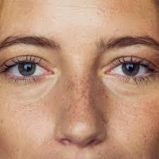 should you use preparation h under eyes