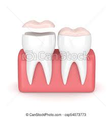 dental onlay 3d render of teeth with dental onlay over white background