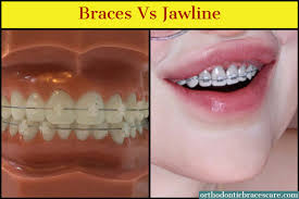 can braces change your jawline