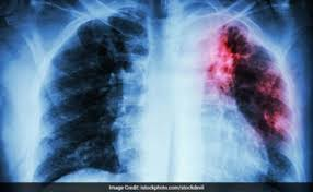 5 Best Foods For A Tuberculosis Patient
