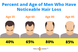 5 Natural Hair Growth Oils For Men