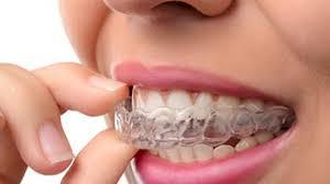 Invisalign Waterloo ON - Teeth Straightening - Invisible Braces