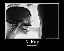 X ray of girl giving blowjob