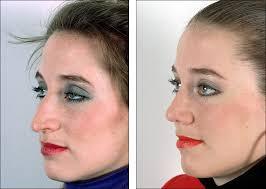 Long Nose Dr Steven Denenbergs Facial Plastic Surgery Before And