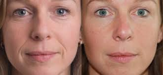face fillers side effects