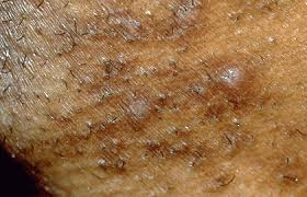 Acne-like breakouts could be folliculitis | American Academy of ...