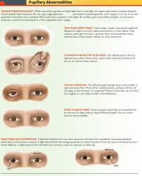 How Do Eyes React To Light Pupillary Abnormalities Overview Unequal Pupils