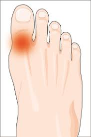 toe joint pain. image1 toe joint pain s