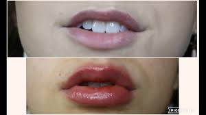 cinnamon oil as lip plumper the real effects