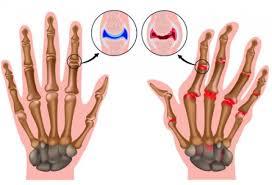 Rheumatism, arthritis: causes, symptoms, Treatment, remedies diet
