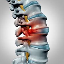 A very small percentage of people with herniated discs resort to surgery
