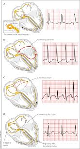 Types Of Arrhythmia Chart Common Types Of Supraventricular Tachycardia Diagnosis And