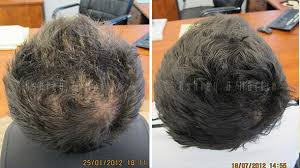 Male Pattern Baldness Cure Inspiration Male Pattern Baldness Treatment Ashley And Martin