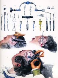 inca trepanation. trepanning inca trepanation g