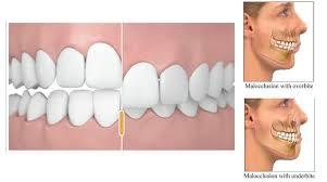 Correcting Overbite I Am Dentistry