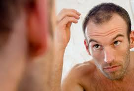 Cure For Male Pattern Baldness Best Men's Hair Loss Treatments And Solutions With Pictures
