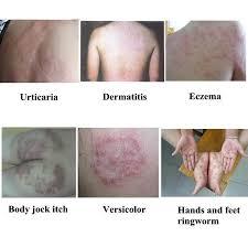 Натурален крем YIGANERJING tongbao против псориазис | дерматит | екзема |  сърбеж | лишей | обриви