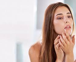 Zovirax InvisiSeal® Patch - Cold Sore Cover Up - Zovirax®