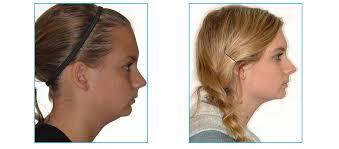 Over Bite Examples Orthodontist