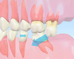「歯 放置」の画像検索結果