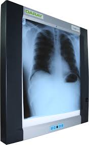 X Ray Light Board X Ray Cassettes Screens And Viewing Boxes