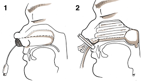 Epistaxis Cautery Packing Ligation