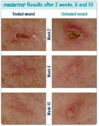 Mederma Proactive Gel Results After 2 Weeks 6 And 10 Before
