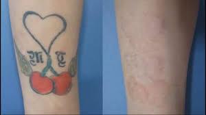 как избавиться от тату самые лучшие способы удалить тату