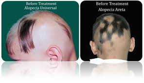 Male Or Female Pattern Baldness Treatments New FAQ's For Alopecia