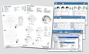 Visual Field Chart Interpretation Henson 9000 Technical Profile Visual Field Analysis