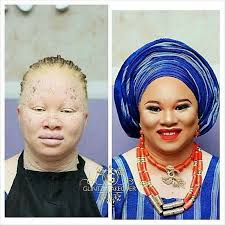 this albino s makeup transformation is amazing