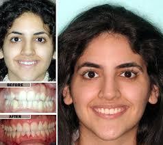orthodontics faq s envysmile dental spa