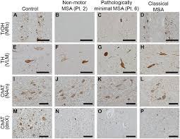 catecholaminergic serotonergic
