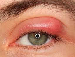 Swollen Eyelid Home Remedies, Cure Upper and Lower Swollen Eyelids ...