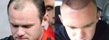 celebs who have had hair transplants