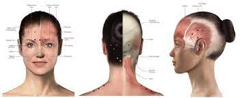 Yes, therapeutic botox is covered by insurance but under very specific circumstances. Botox For Migraine Migrainepal