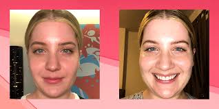 Intense Pulsed Light Laser Ipl Laser For Rosacea Heres What Happened When I Tried It