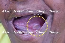 舌 の 裏側 口内炎