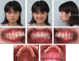 Treatment Of Severe Class Ii Division 1 Deep Overbite