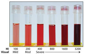 Hemolysis Index Chart Hemolysis Index Hi Versus Visual Estimates Of Hemolysis