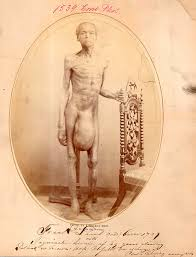 history of the inguinal hernia repair