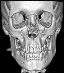 Le Fort Fracture Le Fort Fracture Classification Radiology Reference Article