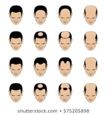 Mens Hair Types Chart Male Pattern Baldness Images Stock Photos Vectors