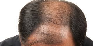 Male Pattern Baldness Causes Enchanting Male Pattern Baldness Causes Symptoms And Treatments