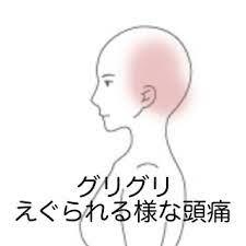 左 後頭部 偏 頭痛