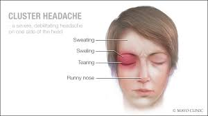 a cal ilration of cer headache