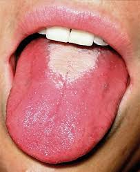 glossitis in a person with scarlet fever red strawberry tongue