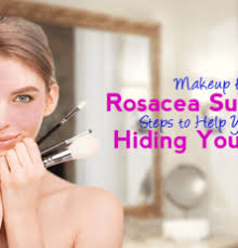 makeup for rosacea sufferers steps to help you stop hiding your face