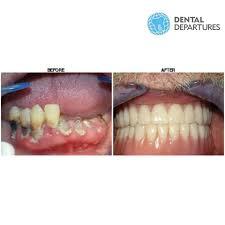 dental departure   pakar pergigian